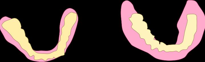 入れ歯って大きい方が正しい、ってご存知でしたか? / 本当に恐いオトナ虫歯…それは痛みなく忍び寄る (2015/02/11 NHK ためしてガッテン)