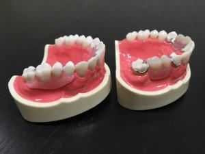 入れ歯 自費と保険の違い1