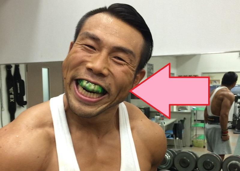 筋肉大久保さん当院マウスピース着用の図 井川歯科撮影